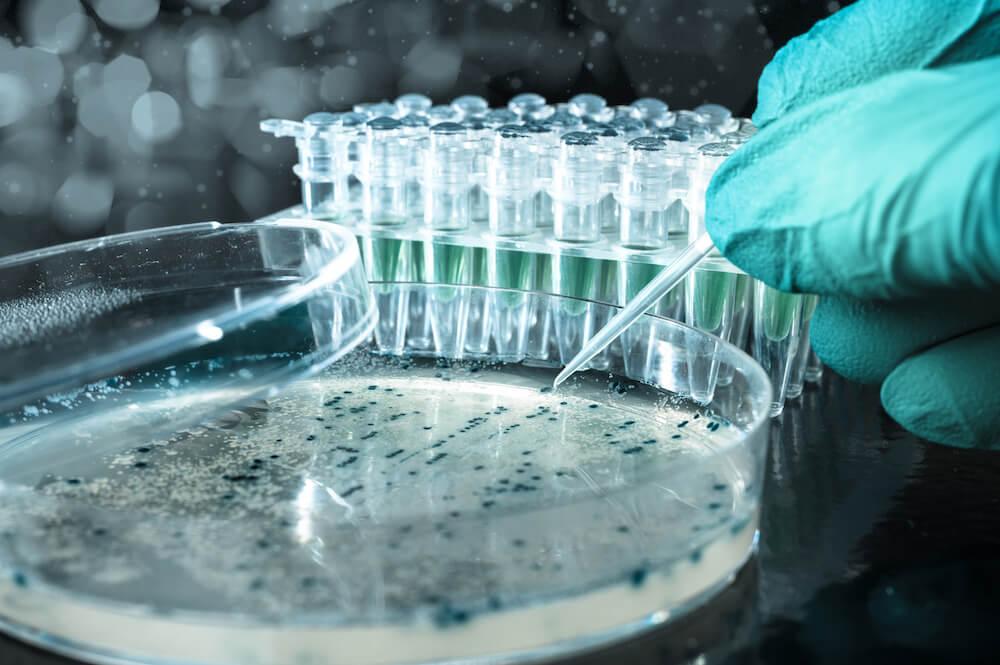 Microbial Bioaugmentation